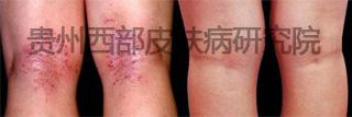 腿部 湿疹.jpg