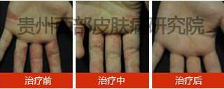 单手湿疹.jpg